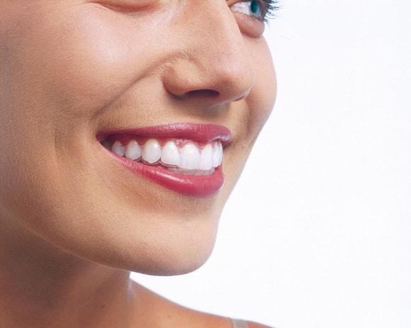 ortodoncia en albacete