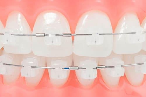 ortodoncia Damon albacete